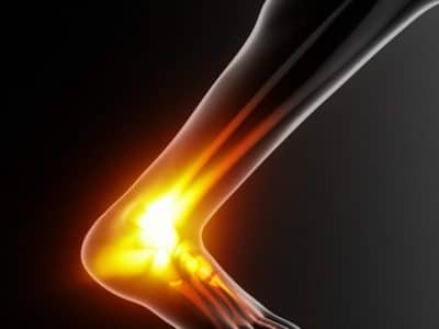 How to Navigate Achilles Tendon Ruptures and Recover Fully